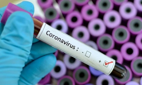 Coronavirus: Another 03 more new patients confirmed Covid-19 and total raise to 113